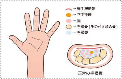 正常の手根管