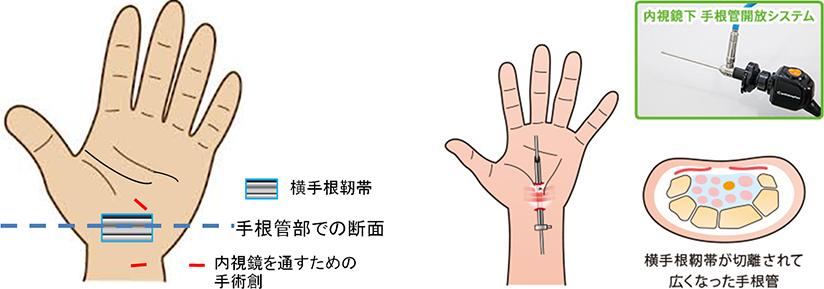 内視鏡下の手根管症候群の日帰り手術
